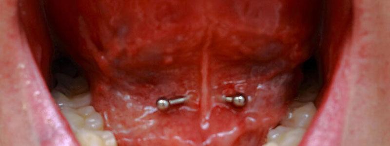 piercing frenillo lengua